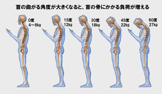 「頸椎前傾」の画像検索結果